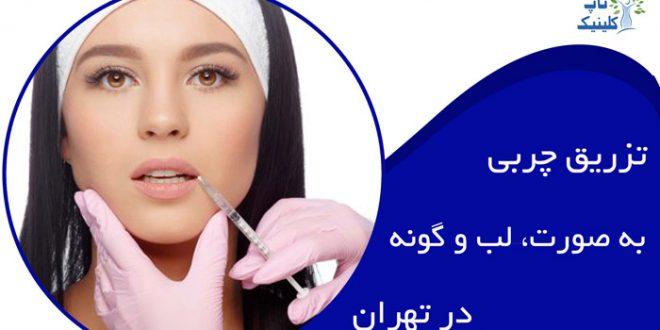 تزریق چربی به صورت در تهران