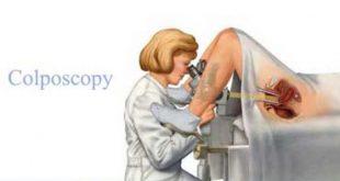 کولوپوسکوپی چیست